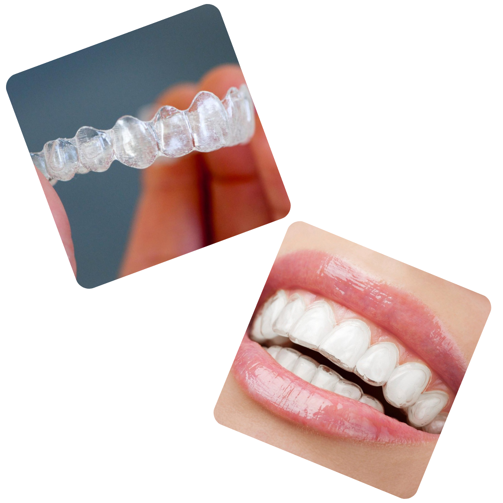 teeth straightening with affordable clear aligners